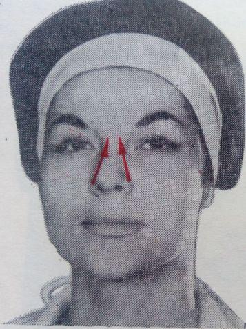 6-masajul-nasului