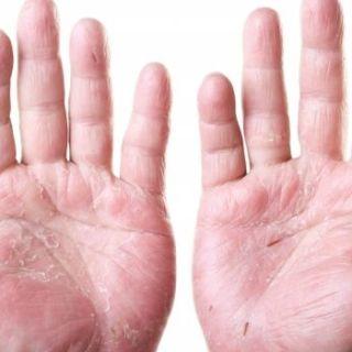 4 remedii naturiste care te scapa de eczeme