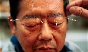 tratament acupunctura faciala