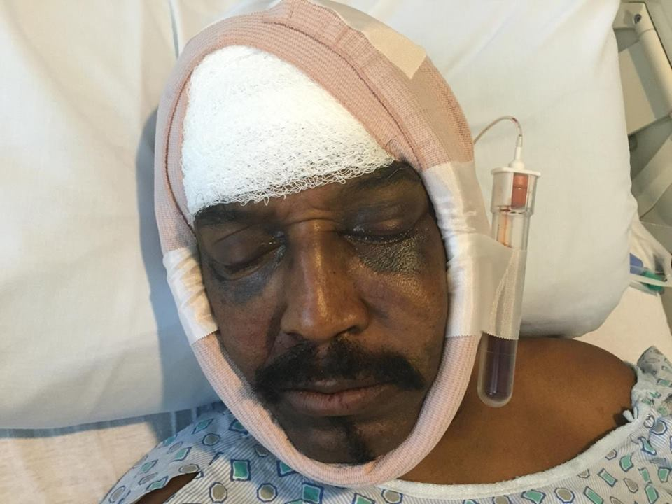http://i2.wp.com/sfbayview.com/wp-content/uploads/2015/08/Dhoruba-bin-Wahad-in-hospital-after-080815-attack-in-Atlanta.jpg