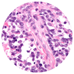 Alveolar Rhabdomyosarcoma Circle