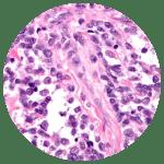 Alveolar Rhabdomyosarcoma Circle