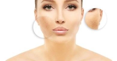 Lighten age spots to reveal a youthful glow