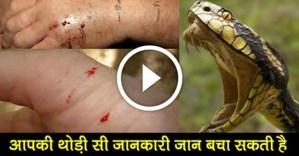 treatment-of-snake-bite