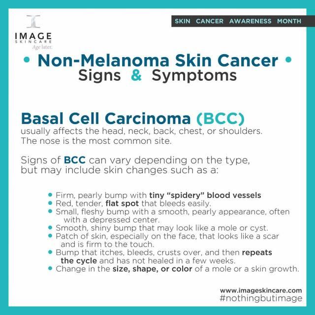 Basal Cell Carcinoma _n