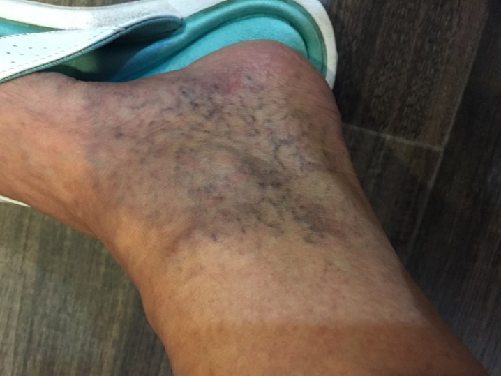 Left Ankle: Before the First Treatment