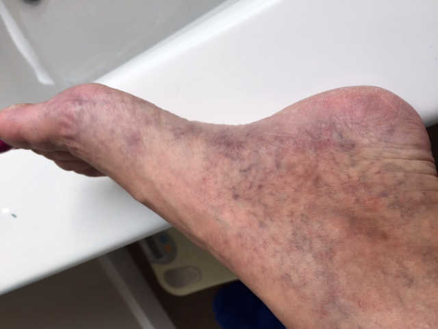This is the left foot after two treatments.