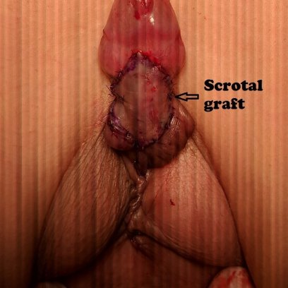 scrotal graft for penis