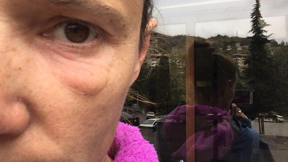 Das erste gesundheitliche Problem in mehr als drei Monaten Veloreisen: Ein entzündetes Augenlid, harmlos aber unangenehmen. (Bild: Andrea Freiermuth)