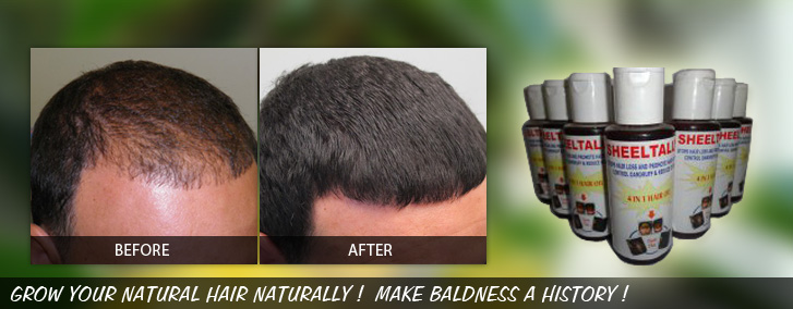 Ayurvedic Hair Regrowth Treatment Hair Loss Treatment
