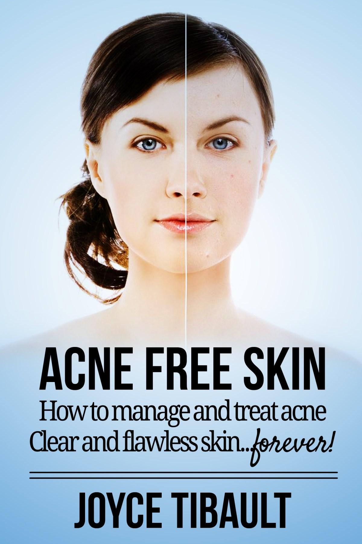 Acne Free Skin by Joyce Tibault