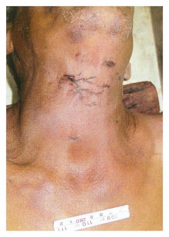 FORENSIC MEDICINE OSPE SLIDES. (5/6)