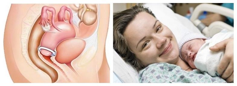 Рыхлая матка: что это значит и чем опасно? Рыхлая шейка матки и другие патологии после родов.