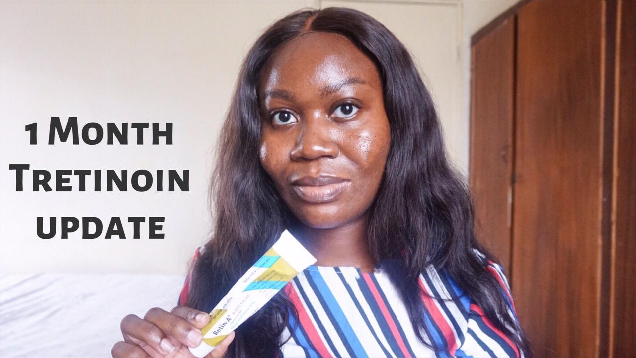 1 Month Tretinoin (Retin-A) update