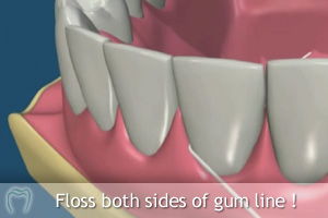 Floss either side of the gum line