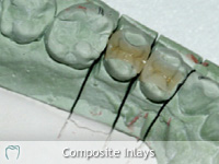 Composite Inlays