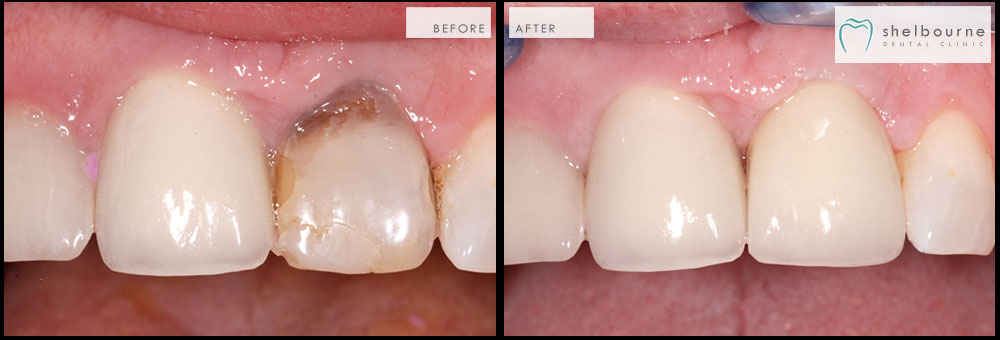 Manfaat Kesehatan Mahkota Gigi - Global Estetik Dental Care