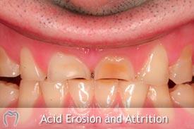 Acid Erosion
