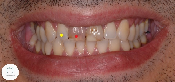 Photo of dark teeth that need dental crowns