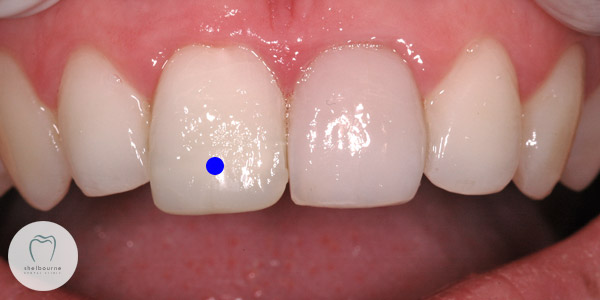 Toothache from upper right  central incisor (blue dot) tooth.