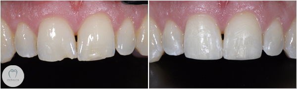 Cosmetic Bonding to fix chipped teeth