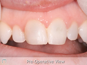 Patient unhappy with appearance of her front teeth