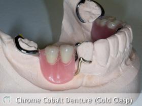 Chrome Cobalt Denture