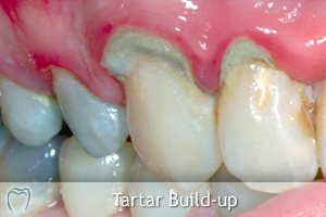 Tartar Build-up