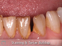 Staining and Tartar Build-up