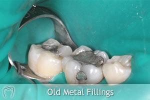 Old Metal Fillings
