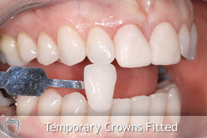 Temporary Crowns Fitted