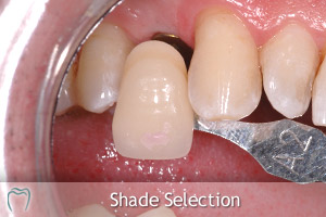 Implant Crown Shade Selection