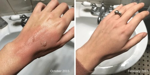 Burn healing on hand with rose quartz crystals