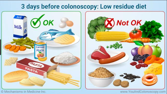 Colonoscopy pic