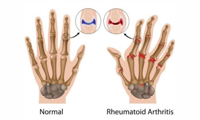 artriti reumatoid