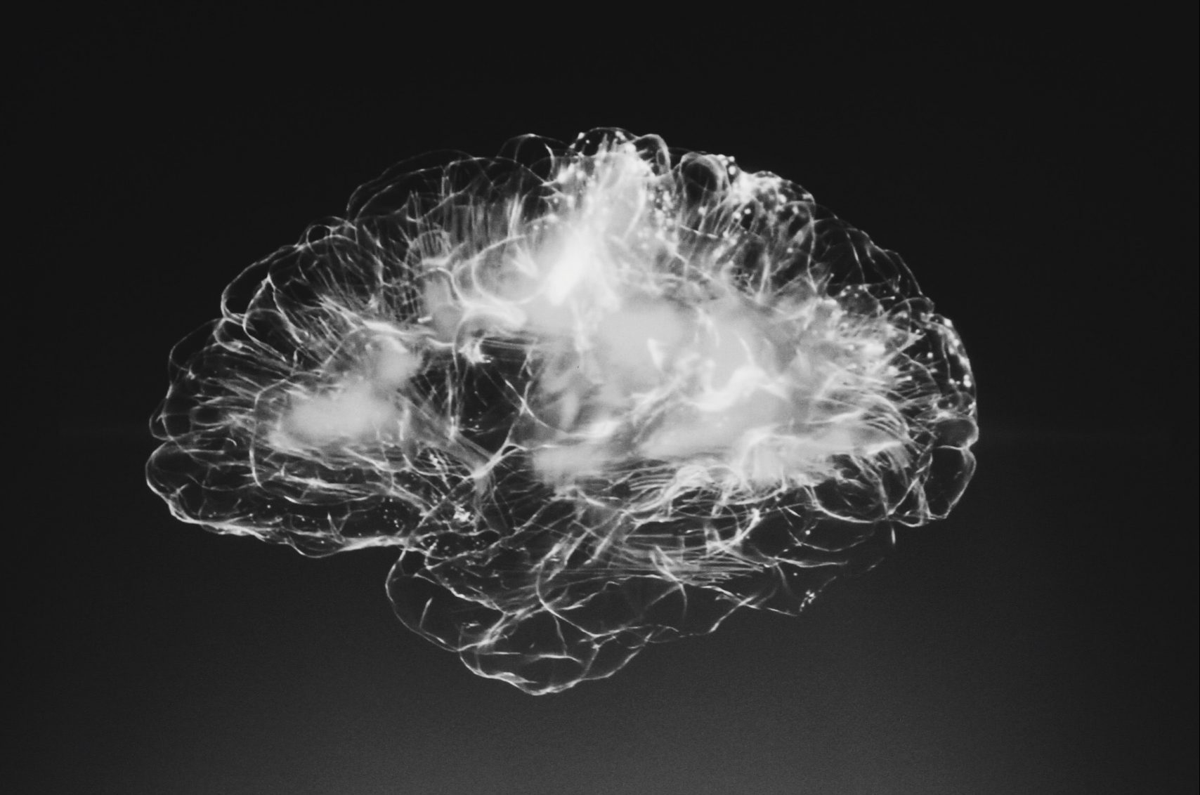 White, glowing neural network in the brain on a black background