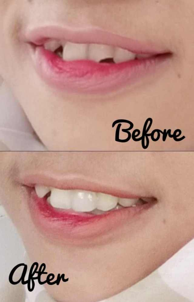 Gigi Seri yang ditambal before-after