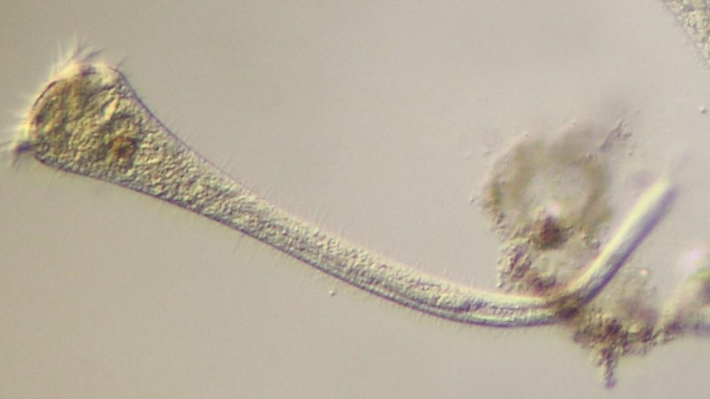 Karar mekanizması ile hareket eden tek hücreli organizma: Stentor roeseli