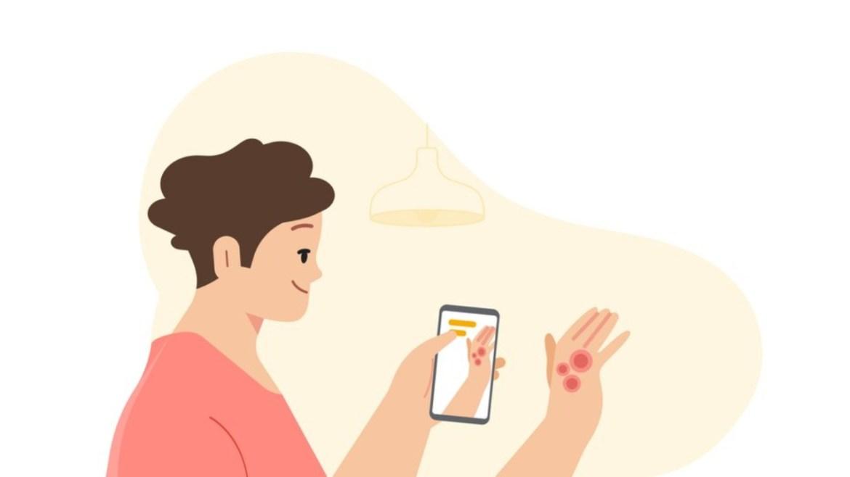 Google, dermatoloji uygulaması geliştirdi.