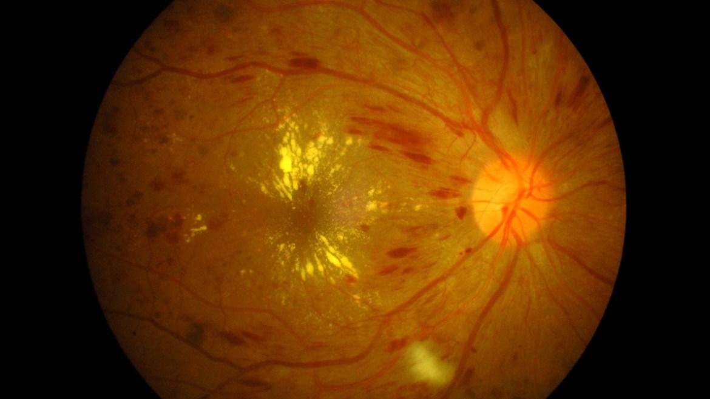 Diyabet ve diyabetik retinopati