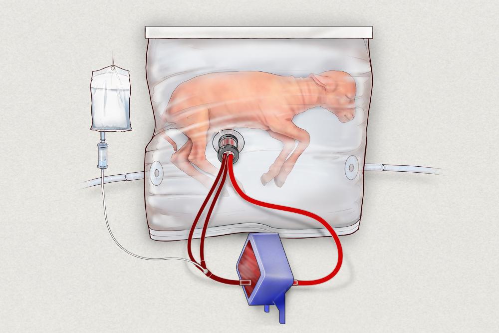 Útero artificial bebés