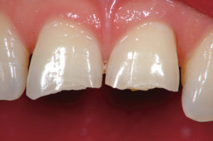 Intraoral condition at first visit