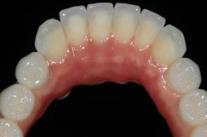 Dental prosthesis Zirconia frame layered with porcelain