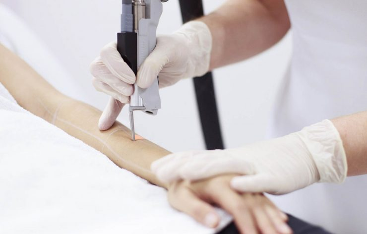 full arms laser hair removal