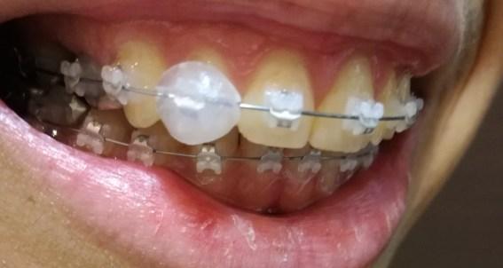 ワックスをつけた歯