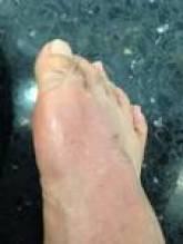 第1指中足骨受傷直後