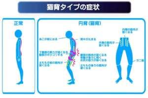 猫背の症状