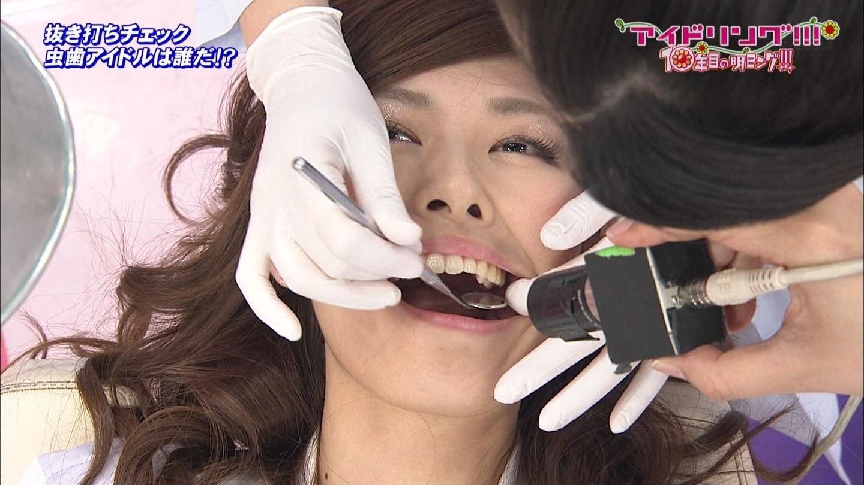 アイドリング虫歯 (17)