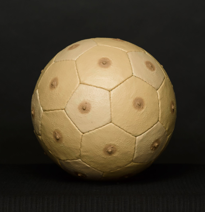 Ballon-sein
