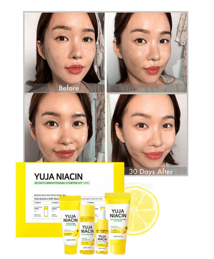 Review Some By Mi Yuja Niacin Starter Kit : review, niacin, starter, Niacin, Brightening, Starter, Ichigo
